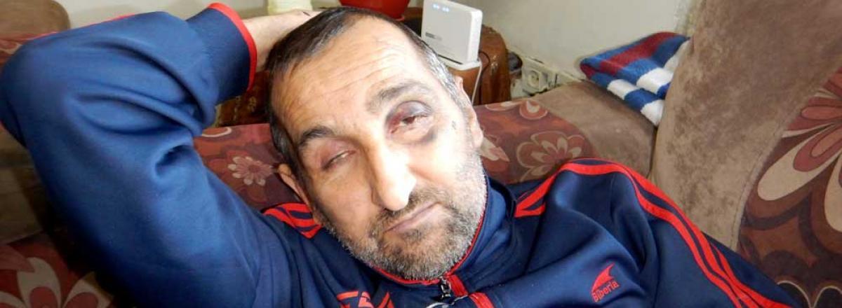 Munzer Muzher a few days after the assault. Photo by Musa Abu Hashhash, B'Tselem, 25 Feb. 2019