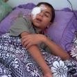 "<p>[5564] 16.9.0 מוחמד עבד רבו, בן 13, תושב מחנה הפליטים ג'בליא, איבד את עינו הימנית כשנפגע מירי טנק של צה""ל.</p><p>תצלום: מאזן אל-מג'דלאוי, בצלם</p>"