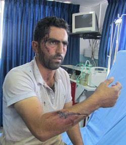 Yasser Na'asan at the hospital. Photo: Iyad Hadad, B'Tselem, 26.10.13