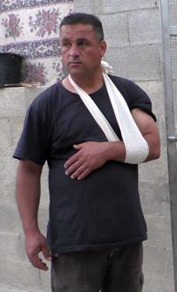 Muhammad 'Odeh, whose arm was injured. Photo by Salma a-Deb'i, B'Tselem, 22 April '17